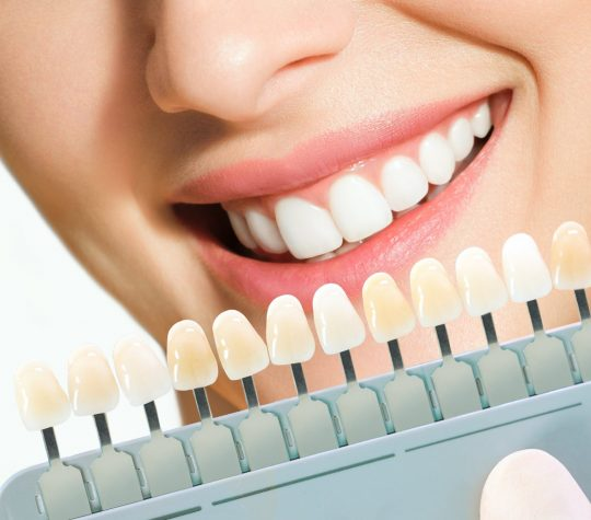 Get a brighter smile with teeth whitening
