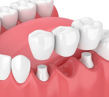 how dental bridges are placed