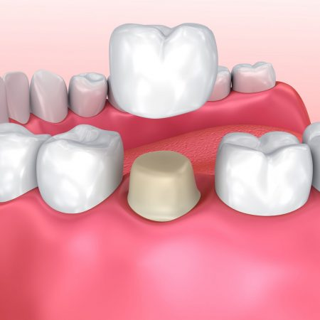 how dental crowns are placed