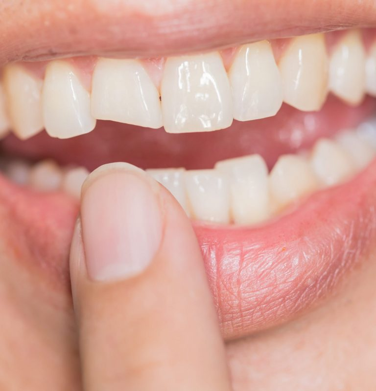 Tooth bonding can help you with chipped or broken tooth