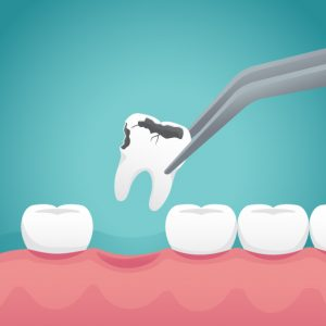 getting tooth extraction for decayed tooth